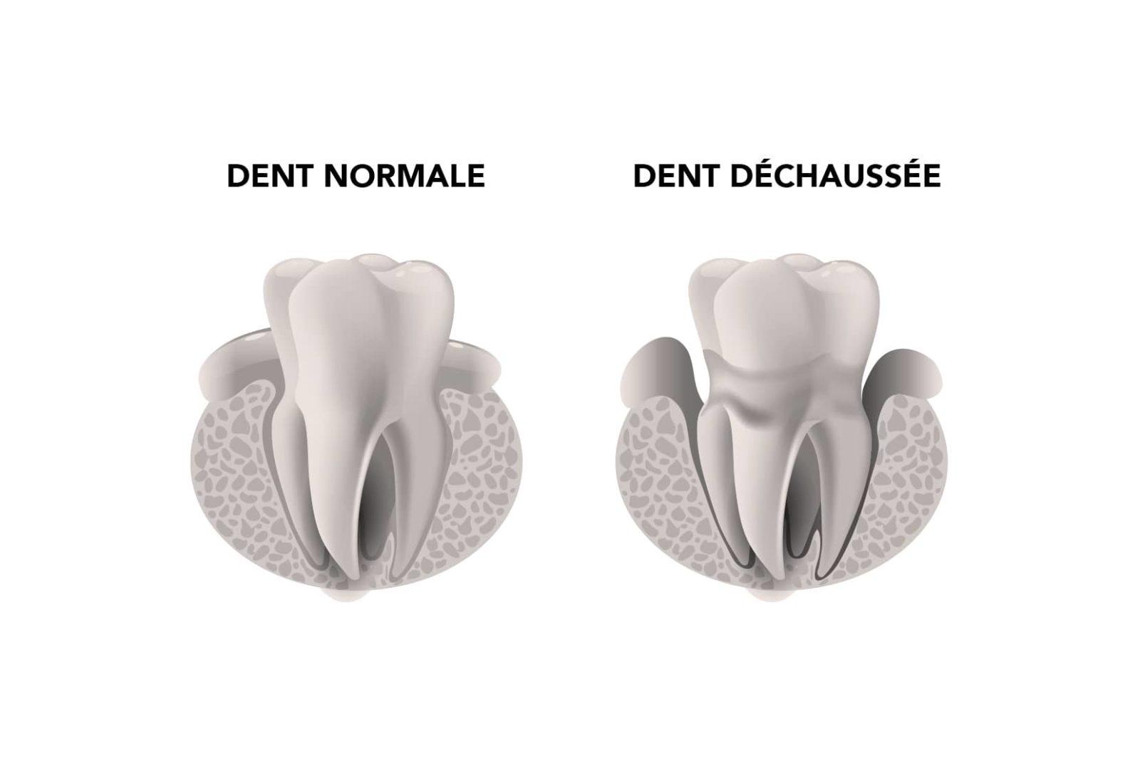 Traitement du déchaussement dentaire à Lyon - Dr Serge Sobol