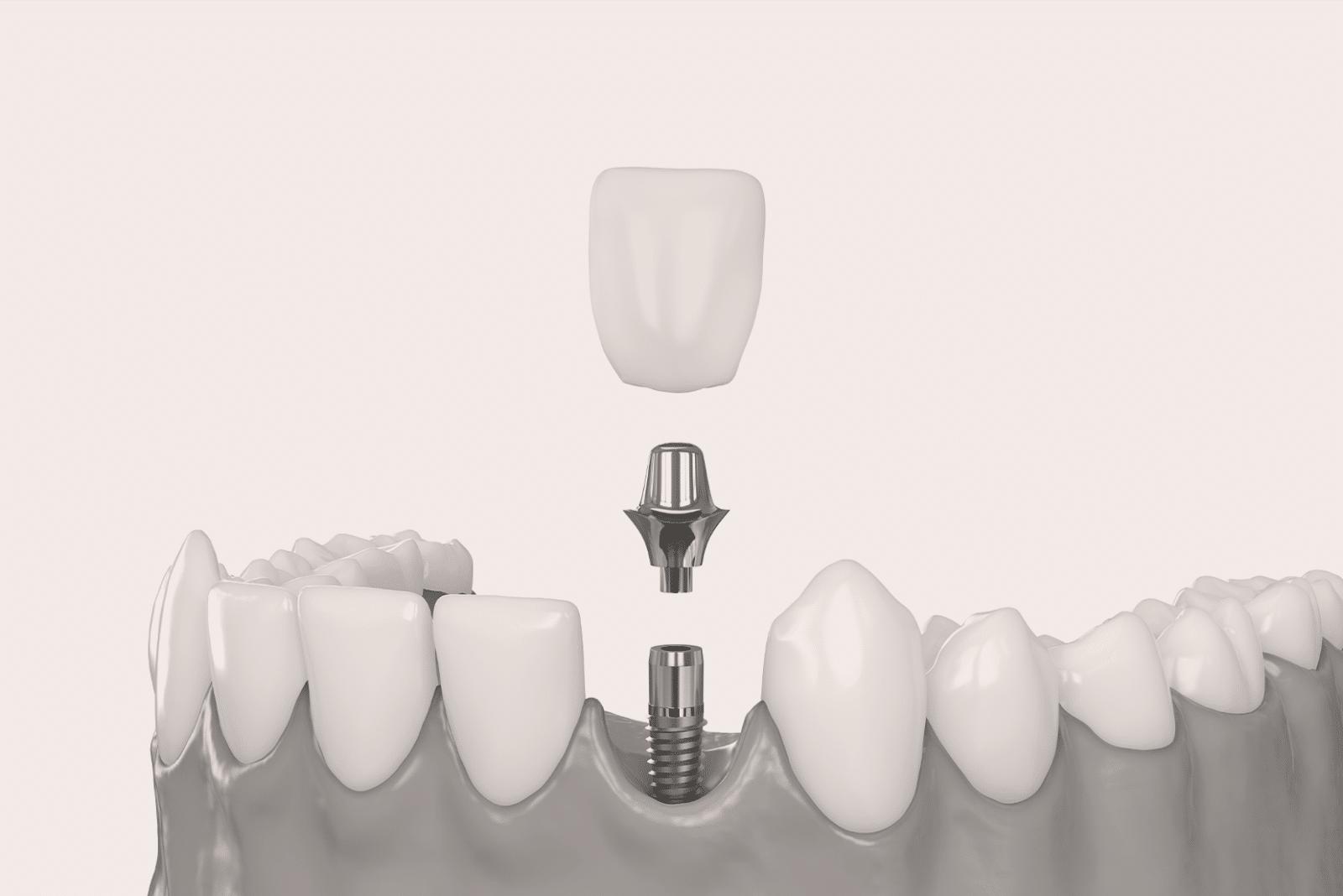 L'implantologie dentaire : remplacer des dents manquantes à Lyon