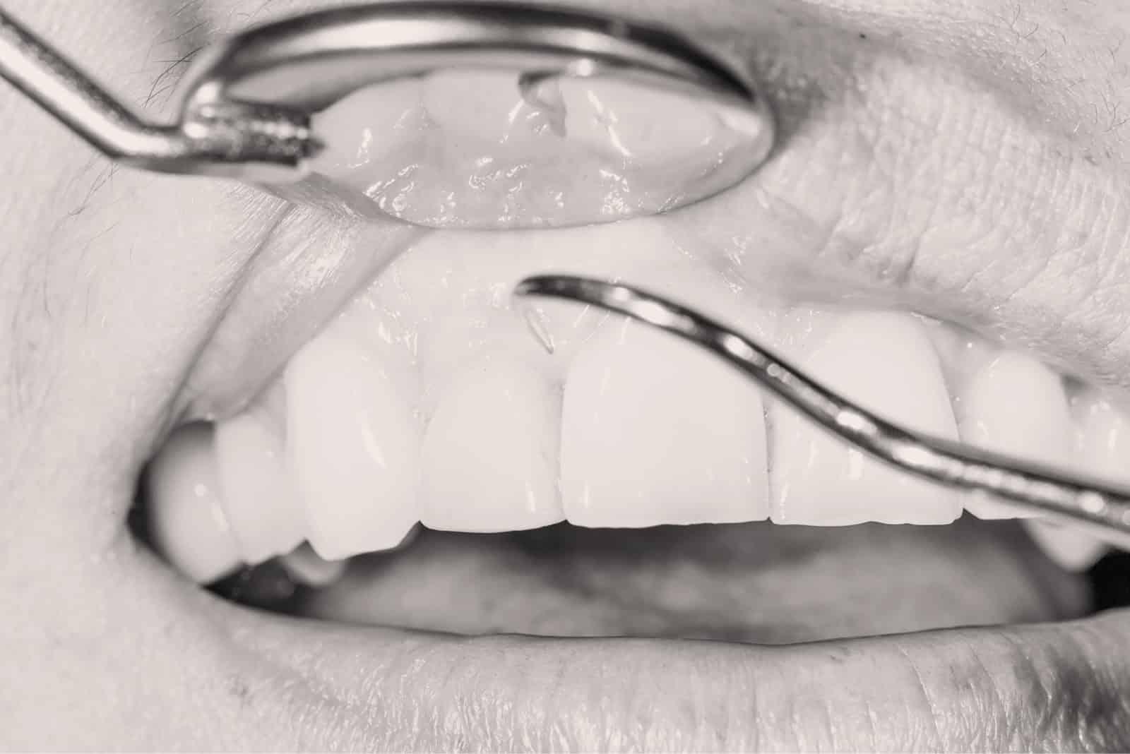 Traitement des mobilités dentaires à Lyon - Dr Serge Sobol