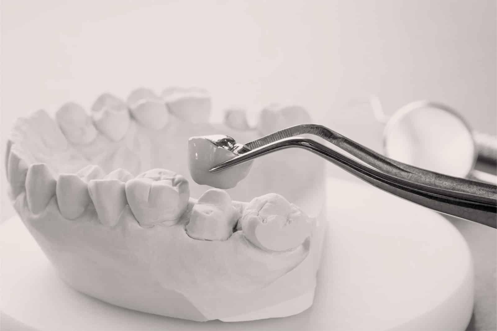 Les prothèses et autres traitements pour l'esthétique dentaire à Lyon