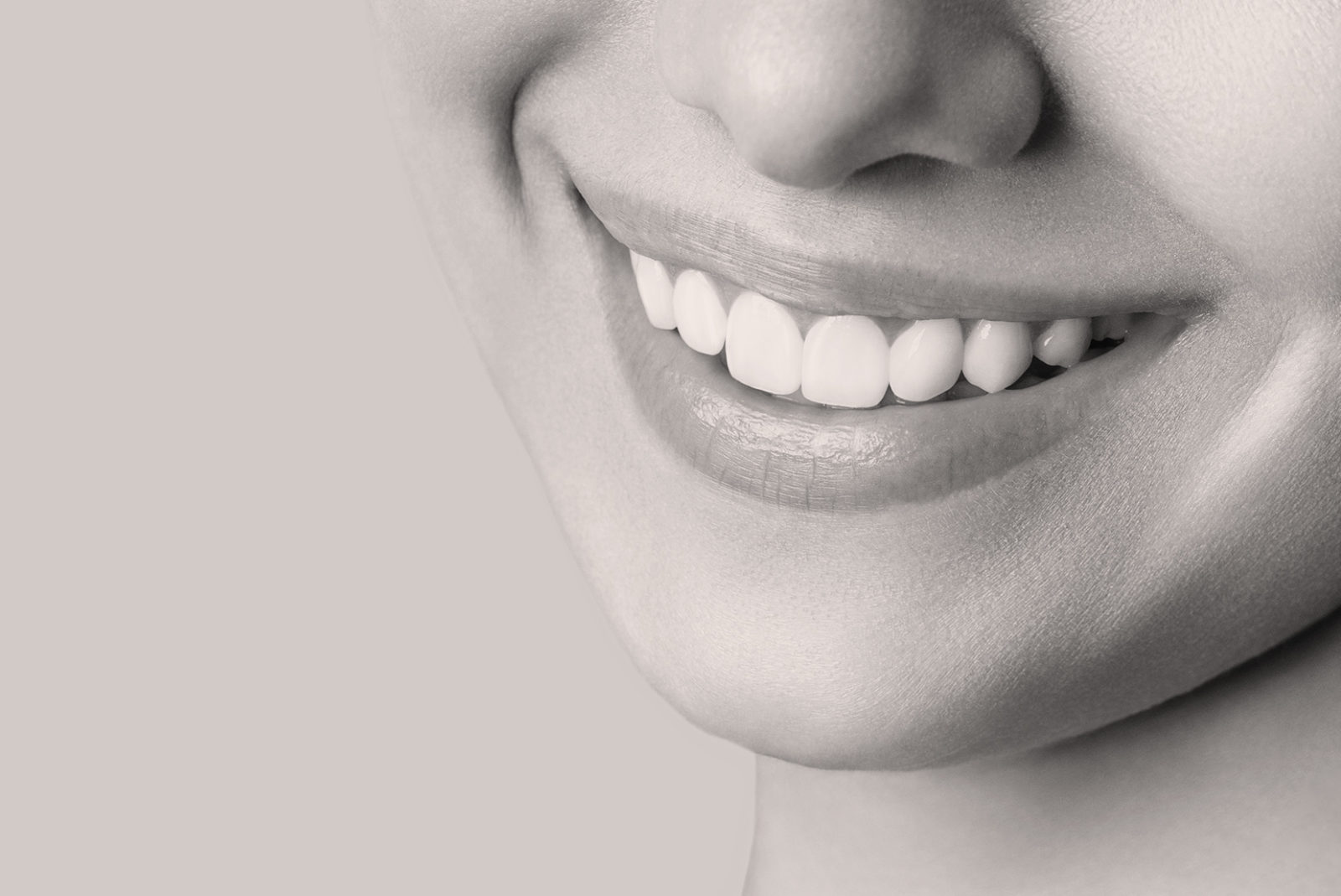 Blanchiment dentaire à Lyon - Dr Serge Sobol : Chirurgien-dentiste